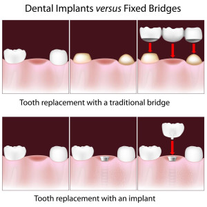 implant vs bridge shutterstock_113160364