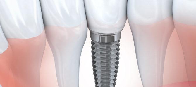 Dental implants | Pelago Dental
